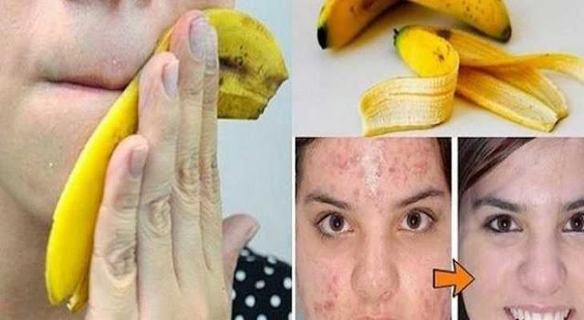 إستخدامات مفيده لقشر الموز ستجعلك تتوقفين عن رميها