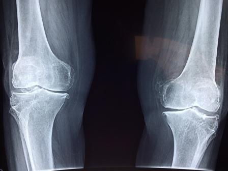 Jenis-Jenis Patah Tulang : Cara Mengobati Patah Tulang Secara Alami