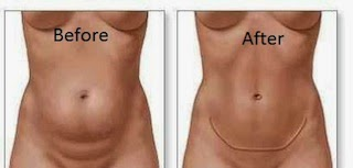 Before after photos tummy tuck abdominoplasty for tight beautiful abdomen without stretch marks