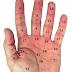 Ý nghĩa nốt ruồi ở lòng bàn tay