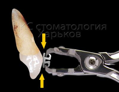 Профессиональное отклеивание брекета построено на деформации брекета