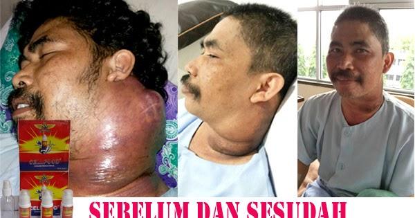 CELLFOOD OBAT KANKER ALAMI: Obat Herbal Kanker Kelenjar ...
