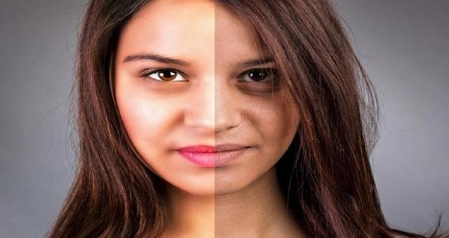 5 Penyebab Pigmentasi Yang Wajib Anda Ketahui
