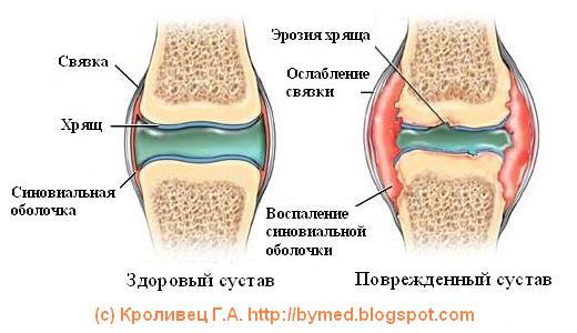 Изображение - Хрустят суставы йога artrit