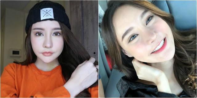 Sudah Habis Rp. 500 Juta untuk Oplas, Malah Menderita, Tapi Setelah 3 Bulan Hasilnya Bikin Melongo