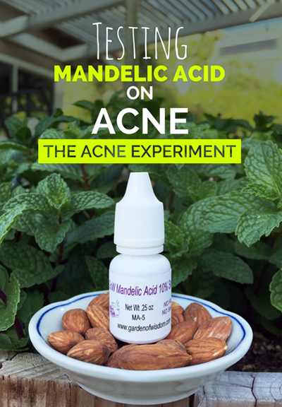 Testing Mandelic Acid on Adult Acne - The Acne Experiment
