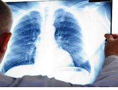 Cara mengobati radang paru-paru dengan menggunakan madu dan belimbing