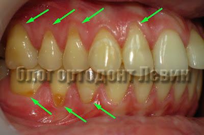 Рецессия десны осложнение ортодонтического лечения