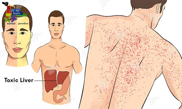 liver, liver damage