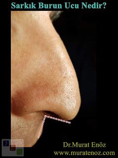 Sarkık burun ucu tanımı - Sarkık burun ucu ne demektir? - Sarkık burun ucu burun fonksiyonlarını ve görünümünü nasıl etkiler? - Düşük burun ucu - Gülerken burun ucu sarkması