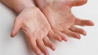 أنواع التهاب الأعصاب السكري
