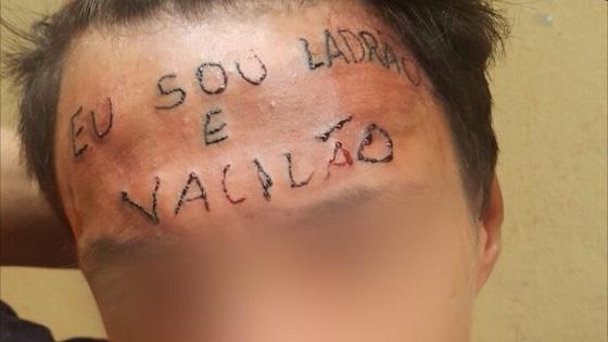 Universidade se oferece para retirar tatuagem da testa de jovem