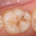 Why You Should Rub Clove and Tea Tree Essential Oils on Your Gums and Teeth