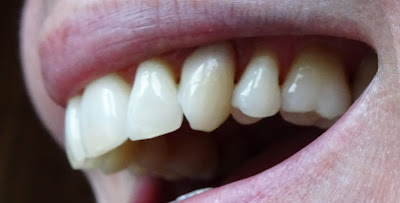 root resorption 10 years later