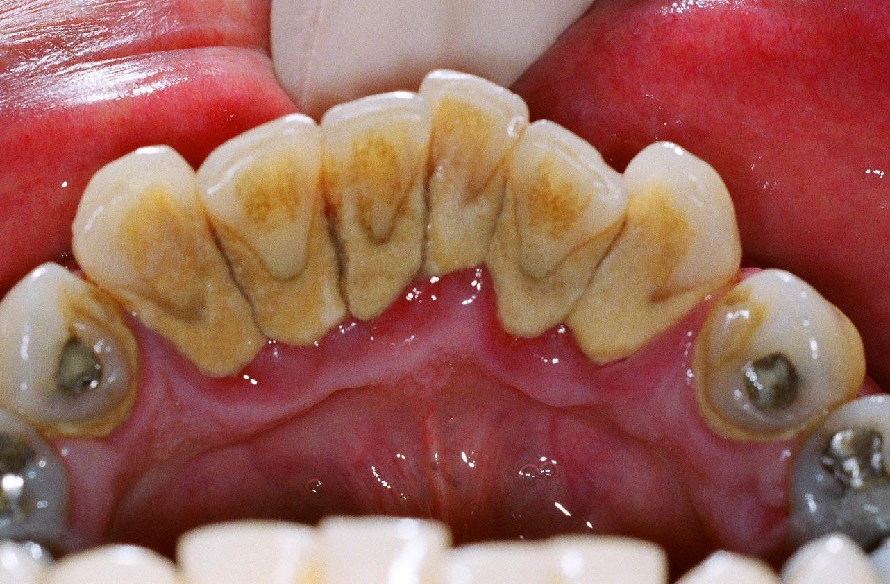 periodoncia dental antes y despues de adelgazar