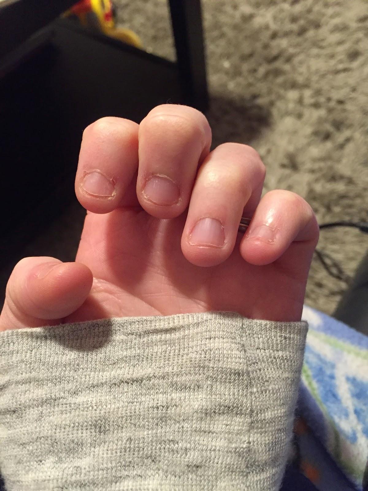 A Healthier Me Week 1: Stop Biting my Nails! - My Mini Adventurer