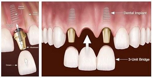 (Có nhiều nguyên nhân gây ra tình trạng mất răng cửa)