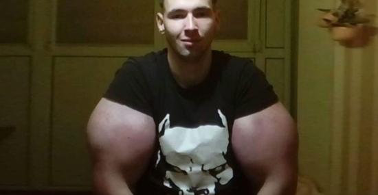 Russo injeta óleo nos bíceps para ter braços do Popeye - Capa