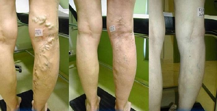 tratamentul venelor varicoase cu oțet