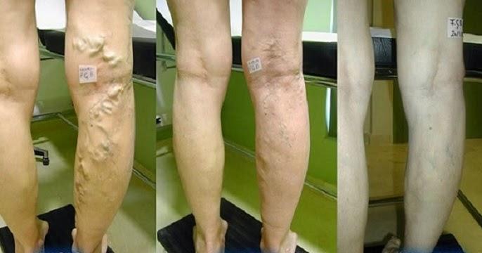 tratamentul venelor varicoase cu oțet de mere