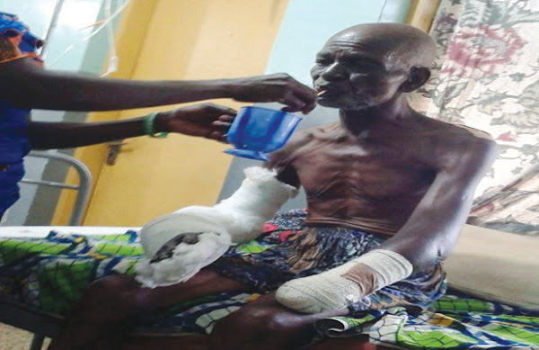 Photo:- 70 Year Old Man's Wrists Cut Off By Robbers Who Attacked Him