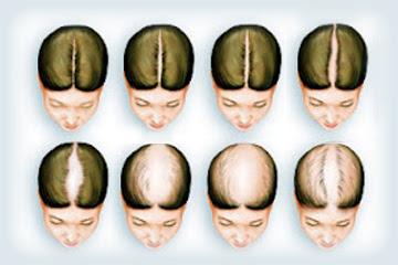 Argan Rain Hair Loss Shampoo