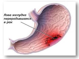 Причины язвы желудка: медики сообщают