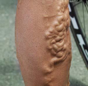 tratamento para perna dolorosa de cirurgia de varizes