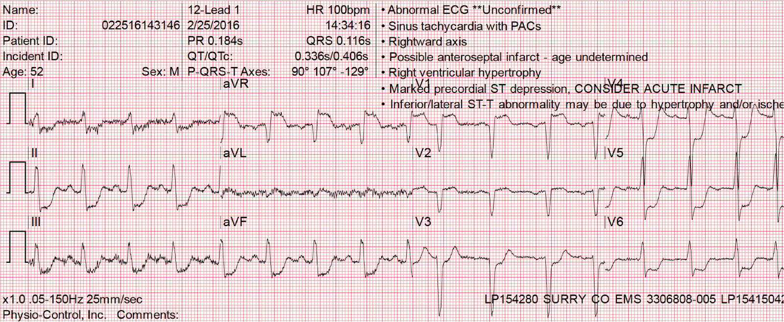 Dr Smiths Ecg Blog Diffuse Subendocardial Ischemia On The Ecg
