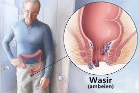 obat wasir no 1 anjuran dokter karena ampuh