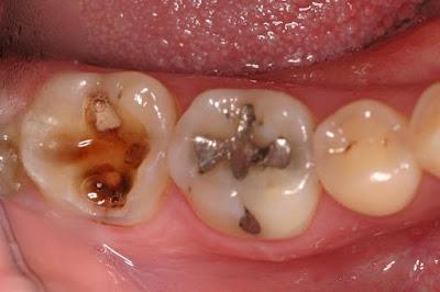 Cara Alami mengobati gigi berlubang secara cepat
