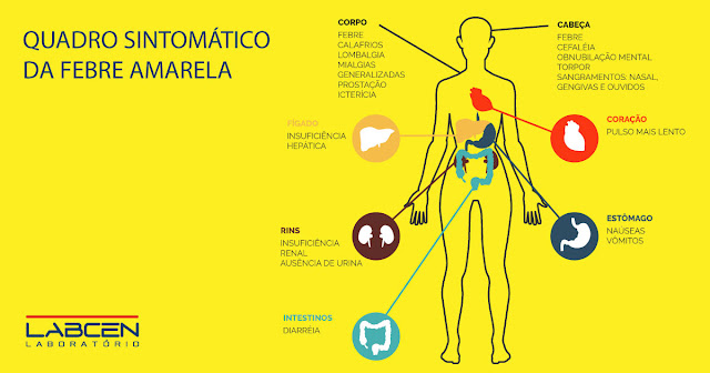 Dia D de vacinação contra febre amarela  no próximo 29 de julho