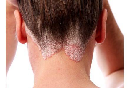 psoriasis cours infirmier plaque vulgaire vulgaris cuir chevelu