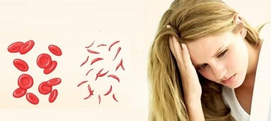 Pernahkah Anda mengalami anemia atau kekurangan darah Penyebab Tubuh Praktis Terkena Anemia