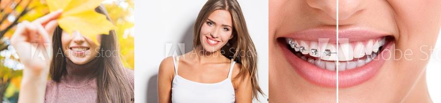 fete zambet aparat dentar
