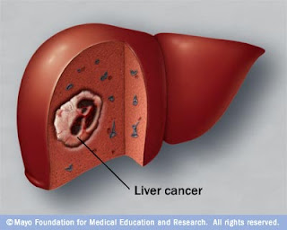 Cancer of the Liver