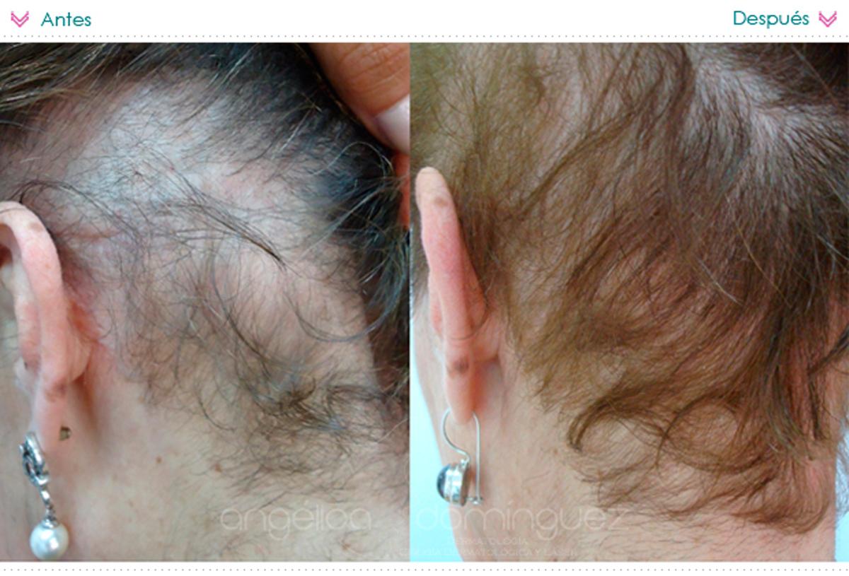 Vita el encanto las vitaminas para los cabellos