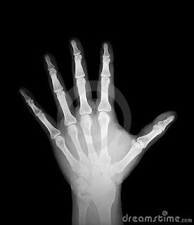 Radiografia mano umana