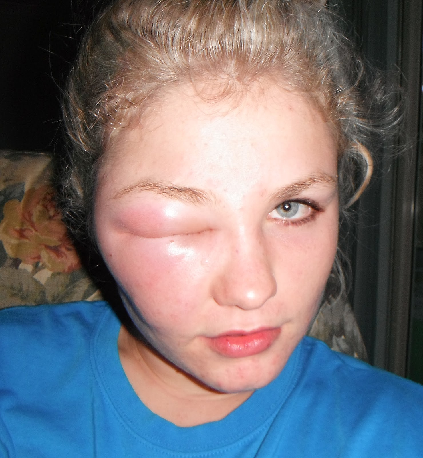 I Was Not Able To Attend Tafe Last Week Because Looked Like This Don T Worry It Only A Bee Sting The Eye