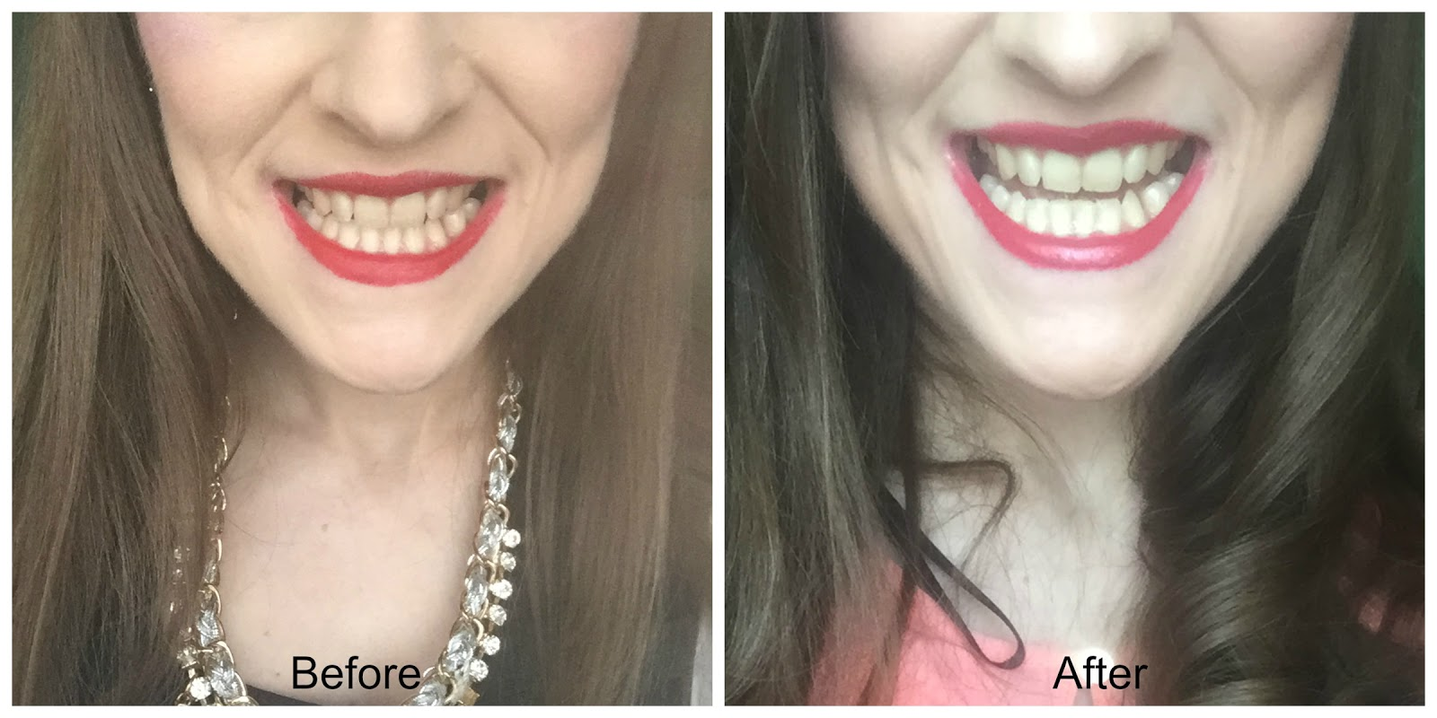 before and after richard marques strong teeth whitening toothpaste
