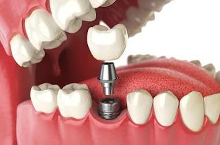 Trồng răng implant có đắt không ?