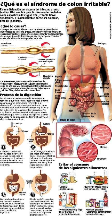síndrome-intestino-colon-irritable-sii-sci