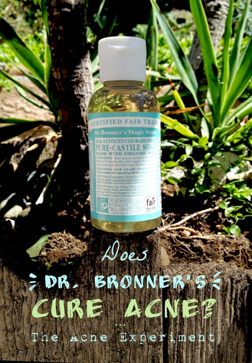 Does Dr. Bronner's Cure Acne? :: The Acne Experiment