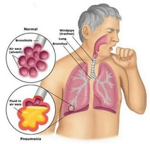 How to treat bronchitis with herbal medicines