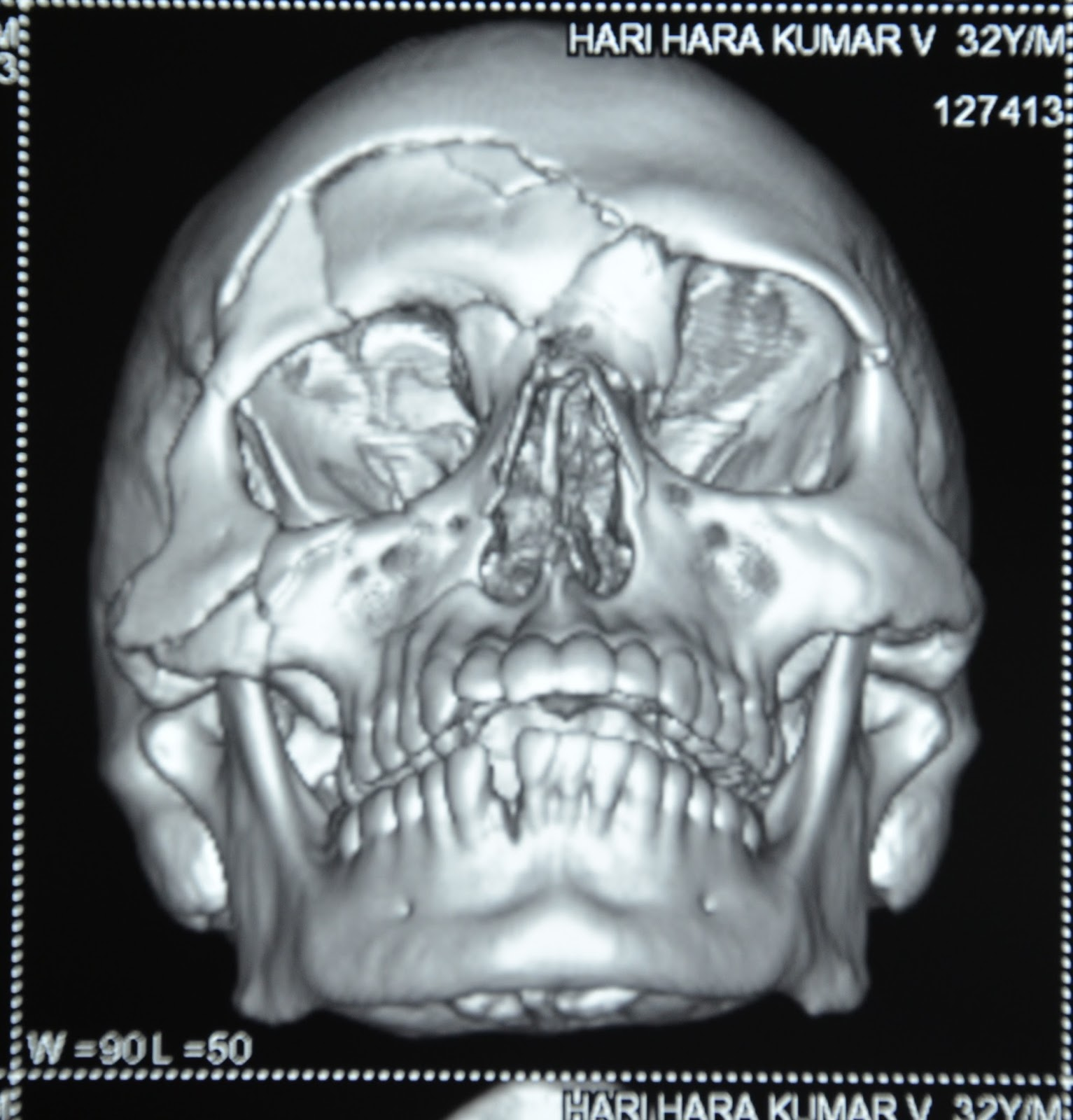 Multiple facial fractures