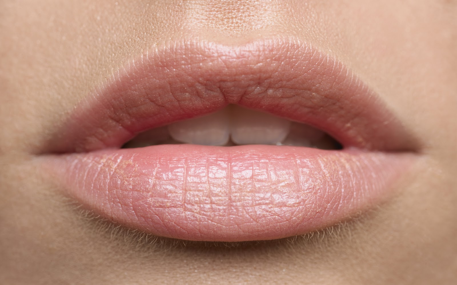How To Save Sore Lips