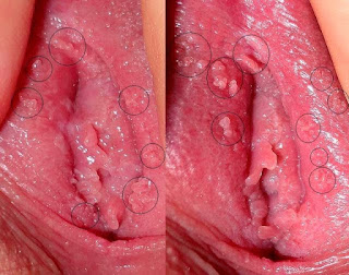 Kenapa Daging Tumbuh di Vagina Memek