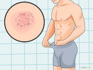 Obat Sipilis Ampuh Untuk Pria