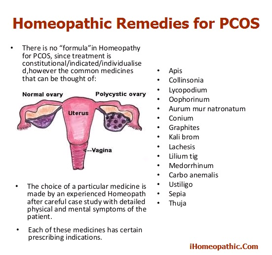 Polycystic Ovarian Syndrome Treatment in Homeopathy | Homeopathic