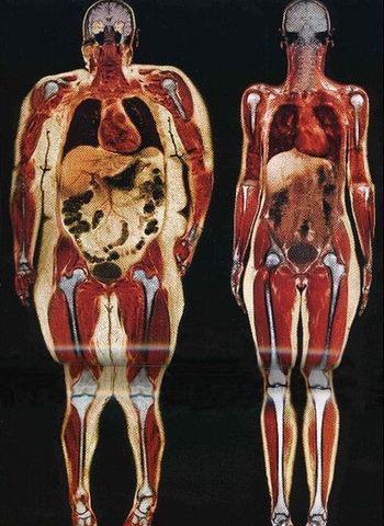 hogyan lehet gyorsan fogyni anorexiás kifejezett zsírvesztés